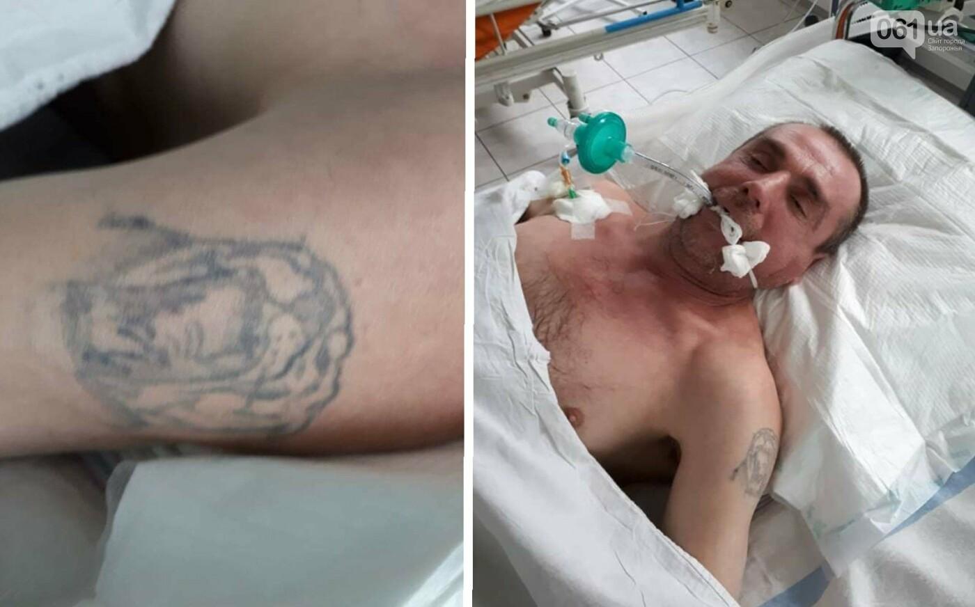 Запорожцев просят помочь опознать мужчину, который попал в больницу, - ФОТО, фото-1
