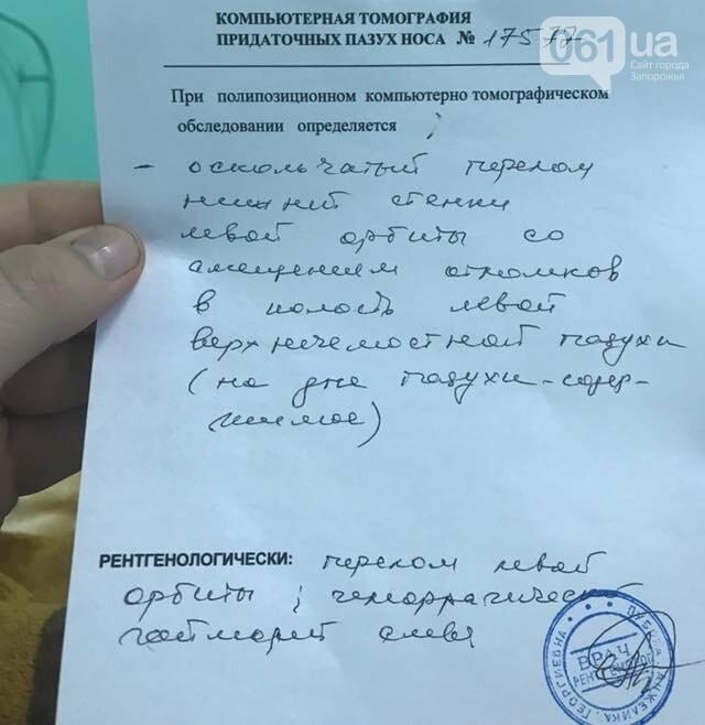 Запорожскому активисту, которого избили из-за замечания о пиротехнике, нужна сложная операция, фото-3