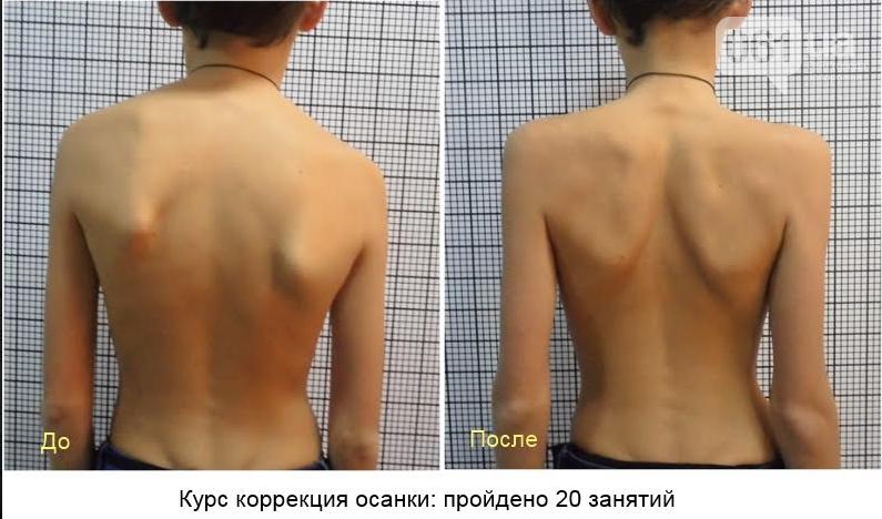 Уникальная возможность избавиться от боли в спине!, фото-5