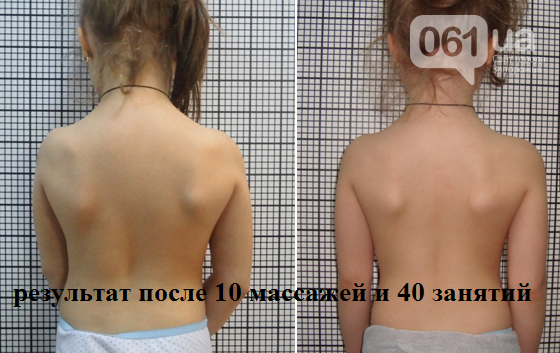 Уникальная возможность избавиться от боли в спине!, фото-6