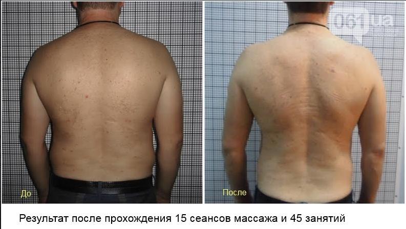 Уникальная возможность избавиться от боли в спине!, фото-8