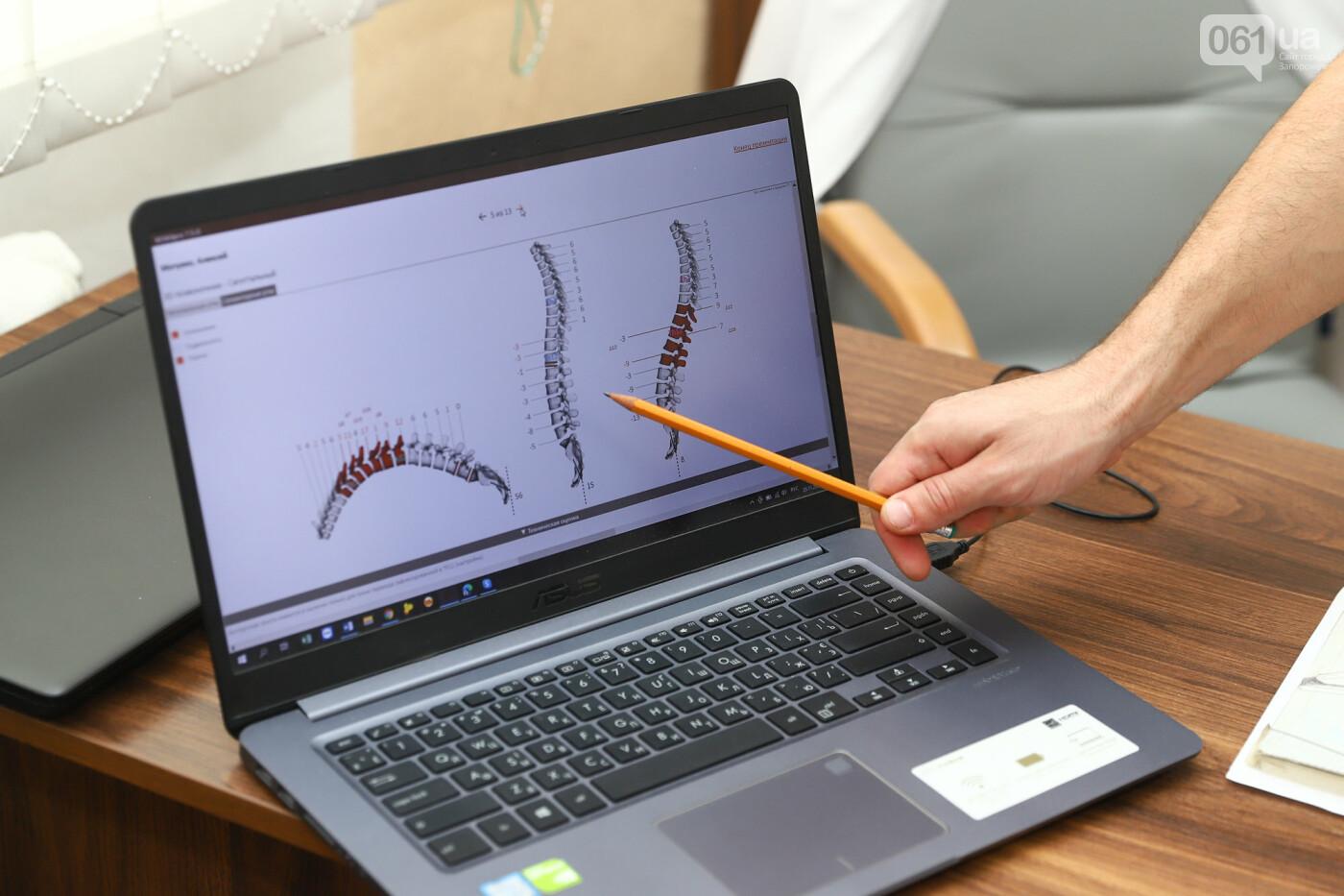 3D-исследование и уникальные тренажеры: как в запорожской клинике OrtoSano лечат болезни позвоночника и суставов, фото-10