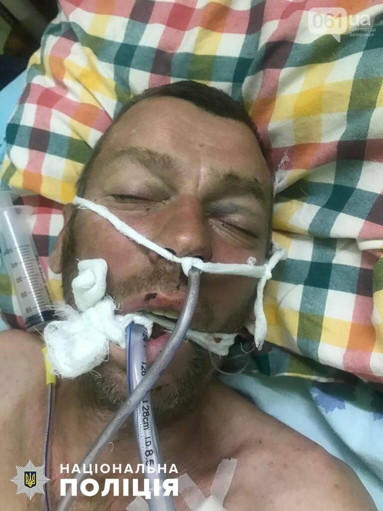 1964278723129474769839191381505095433213897n 60bb6b6144ddb - Бердянская полиции ищет родственников мужчины, умершего от тяжелых травм в реанимации