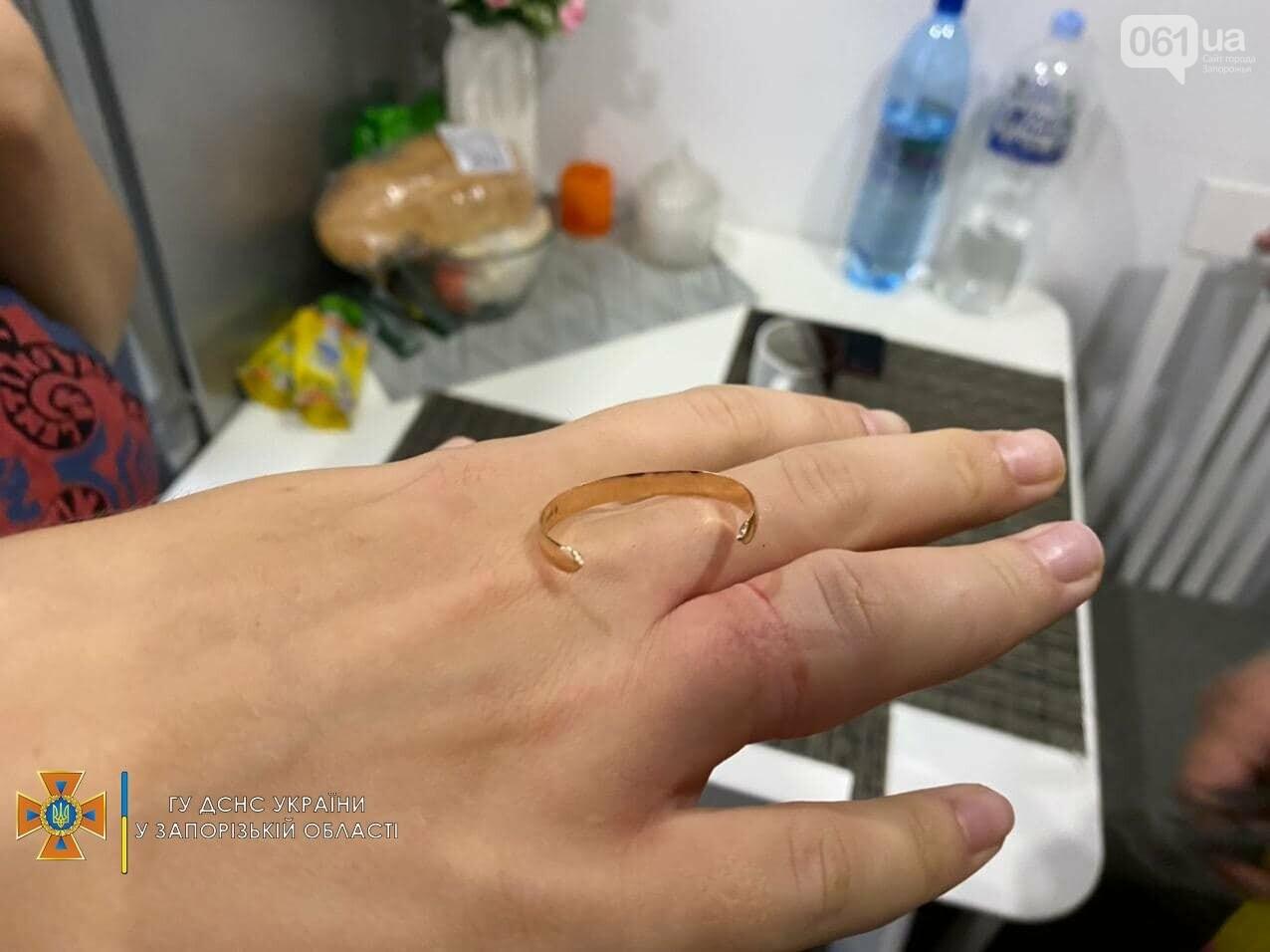 photo2021 09 1109 45 31result 613c68af40364 - В Мелитополе женщина надела обручальное кольцо и не смогла его снять: срезать украшение вызвали ГСЧС