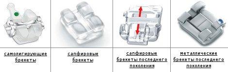 """Ортодонтия в стоматологическом центре """"ЛОТ"""", фото-2"""