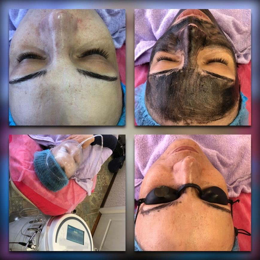 лазерная эпиляция в Запорожье, лазерная косметология в Запорожье, удаление волос лазером в Запорожье, эпиляция лазерная г.Запорожье, косметология в Запорожье, услуги косметолога в Запорожье, косметологические услуги в Запорожье, уход за лицом в Запорожье, уход за телом в Запорожье, лазерная эпиляция в Модном Формате г.Запорожье