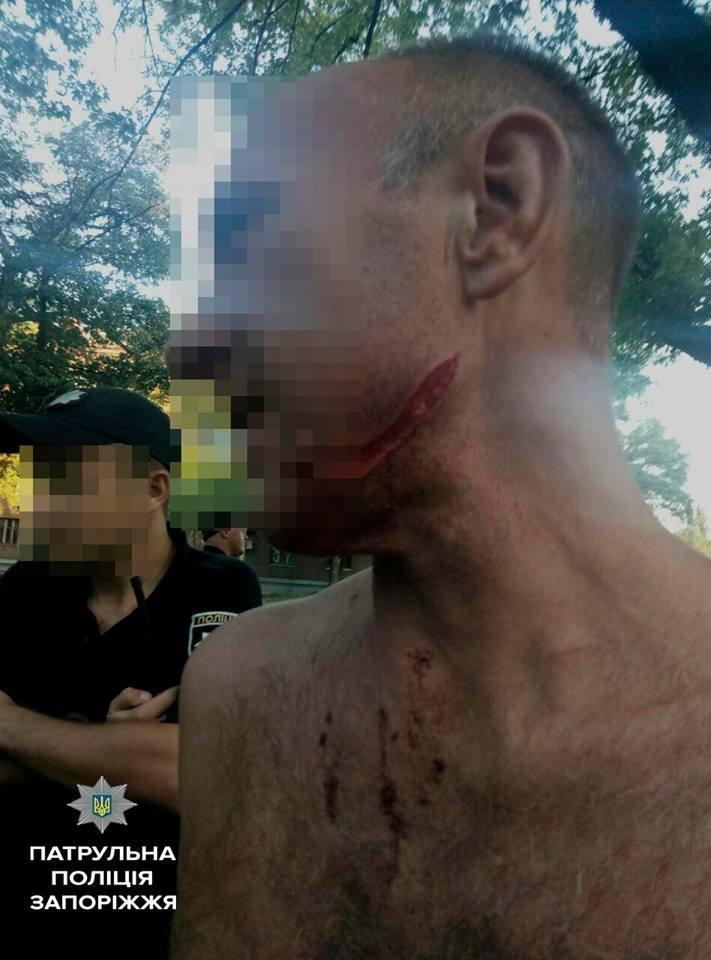 В Запорожье мужчина пострадал за День ВДВ - ему порезали лицо, - ФОТО, фото-1