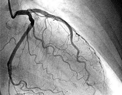 Коронарография - самый достоверный метод диагностики болезней сердца, фото-4