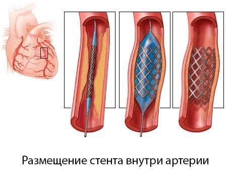 Коронарография - самый достоверный метод диагностики болезней сердца, фото-8