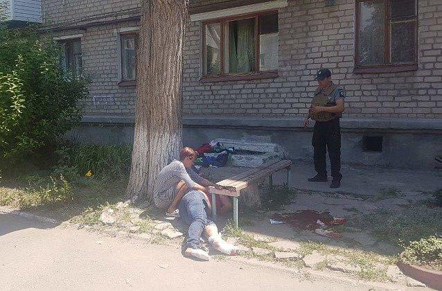 В Бердянске женщина сильно травмировала ноги во время застолья, - ФОТО, фото-1