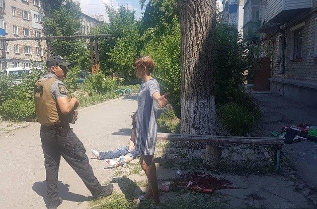 В Бердянске женщина сильно травмировала ноги во время застолья, - ФОТО, фото-2