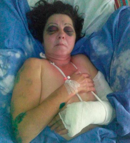 Работницу запорожского детского сада выбросили из поезда по дороге во Львов, полиция ищет злоумышленников, фото-1